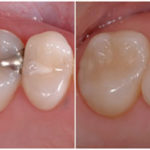 composite_fillings
