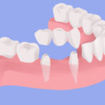 dental bridge cartoon