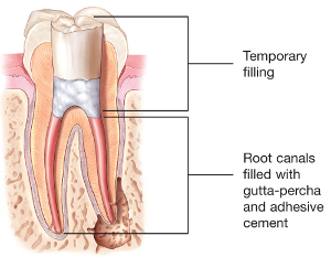 Root Canals - Beck Dentistry DDS