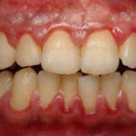 gum disease gingivitis