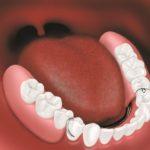 partial denture 2