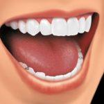partial denture 3