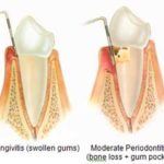 perio gum disease