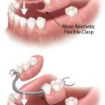 resin vs metal partial denture