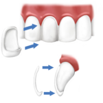 veneers diagram